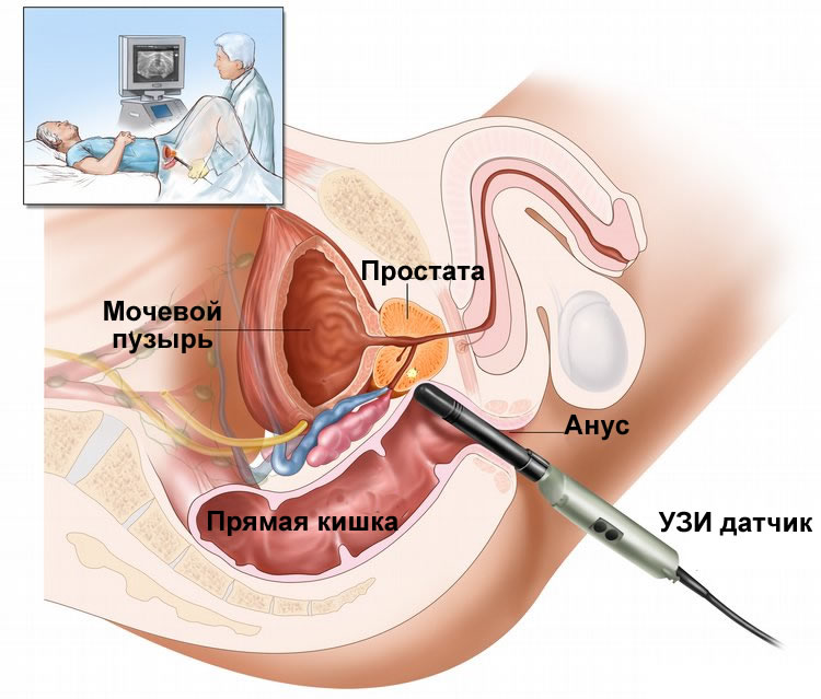 Ultrasound diagnosis of prostate
