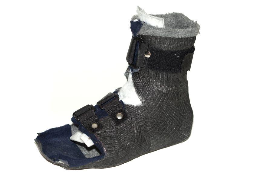 ...носить специальную ортопедическую поролоновую обувь (Darco).