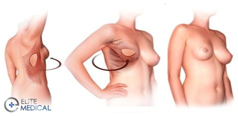 Breast reconstruction after mastectomy operation